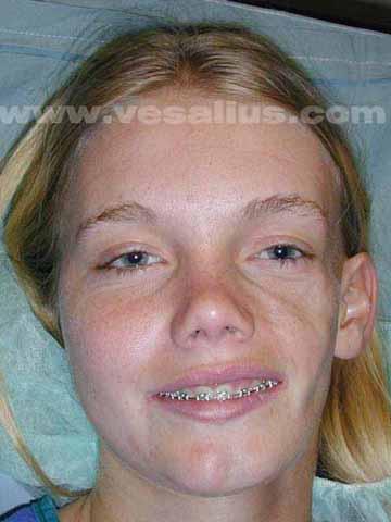 Syndrome digital facial facial