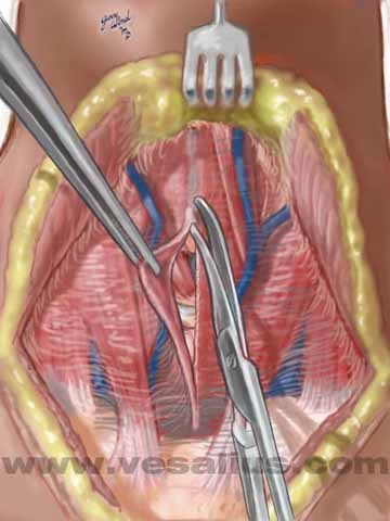 Vesalius Clinical Folios: Thyroidectomy