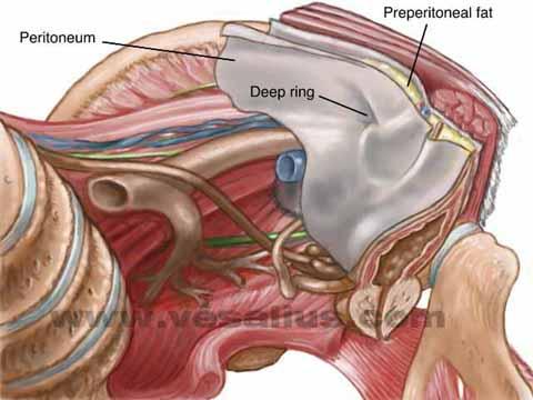 Vesalius Clinical Folios Laparoscopic Hernia Anatomy